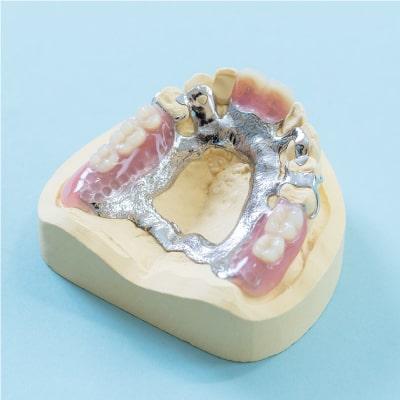 金属床義歯(自費診療)
