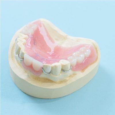 レジン床義歯(保険適用)