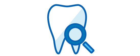 歯質の強化