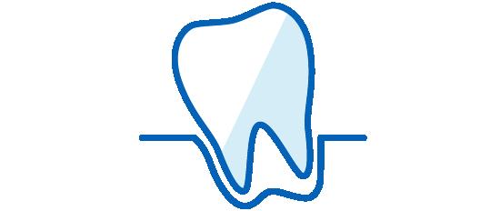 歯周病、歯肉炎の改善